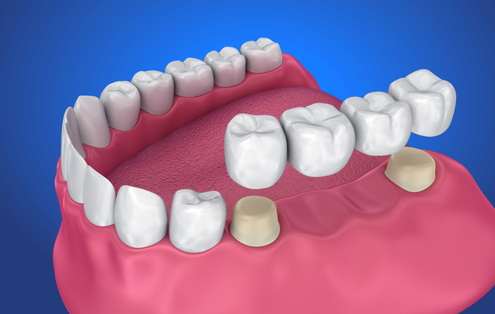3D rendering of a traditional dental bridge attached with a crown