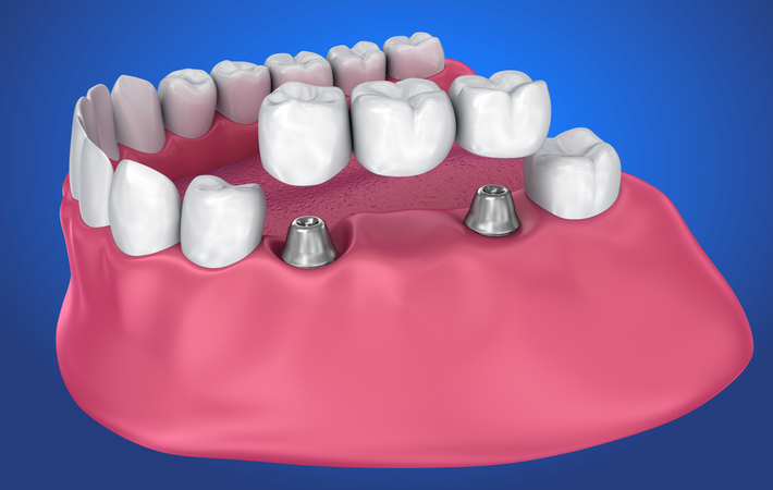 3d rendering of an implant dental bridge