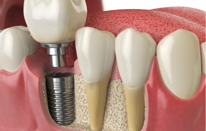 a 3D rendering of a dental implant below the gum line