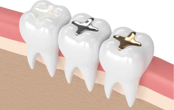 3d rendering dental filling types composite silver and gold
